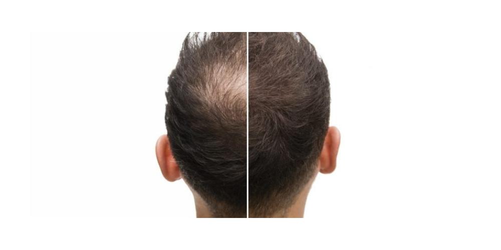 Hairoxol Test